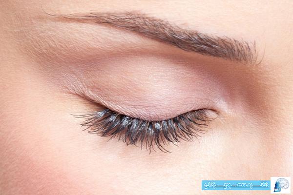 دانستنی های لازم جهت عمل جراحی زیبایی پلک