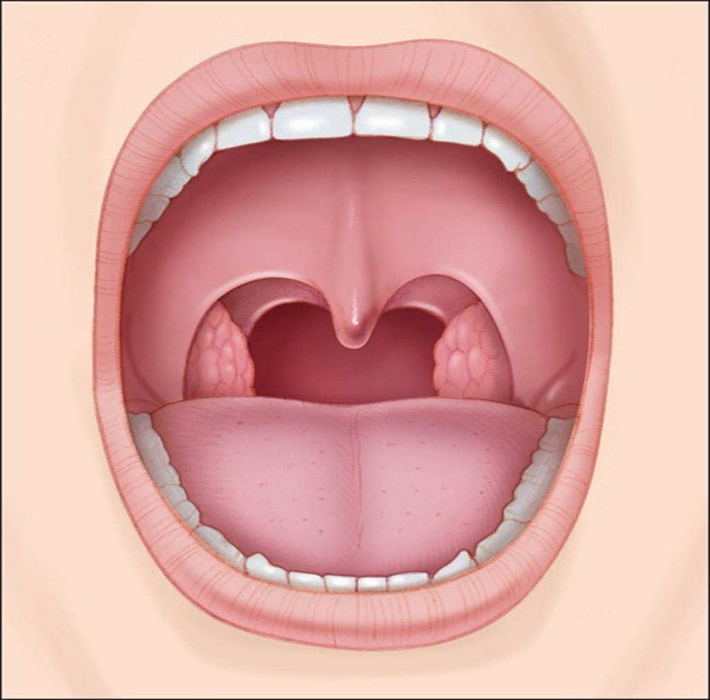 عوامل عفوني شايعترين علت بروز كيست و تومور در ناحيه دهان